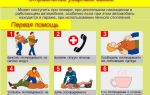 Признаки отравления угарным газом, руководство по оказанию первой помощи